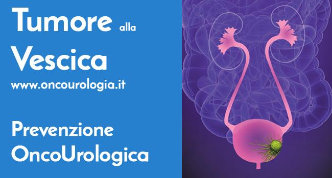 Tumore Vescia