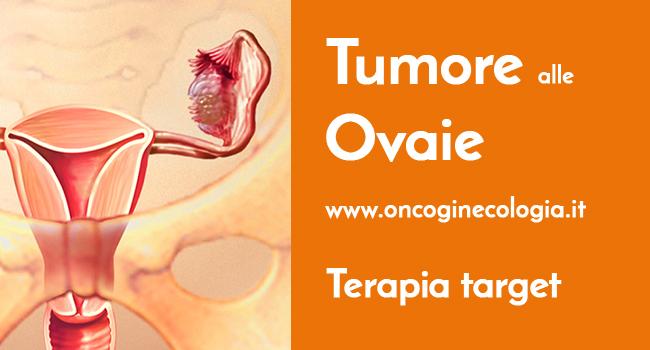 Tumore Ovaie
